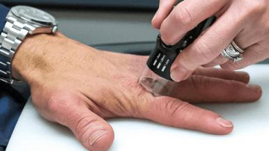 Home | Array Skin Therapy - Psoriasis and Vitiligo Treatment